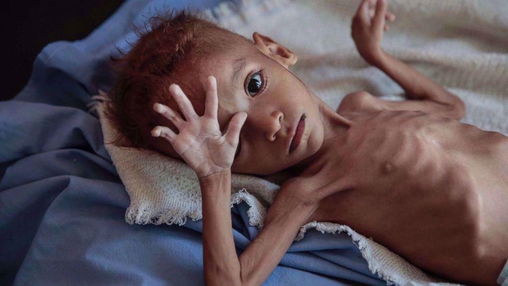 UNICEF says war in Yemen has killed or maimed 10,000 children