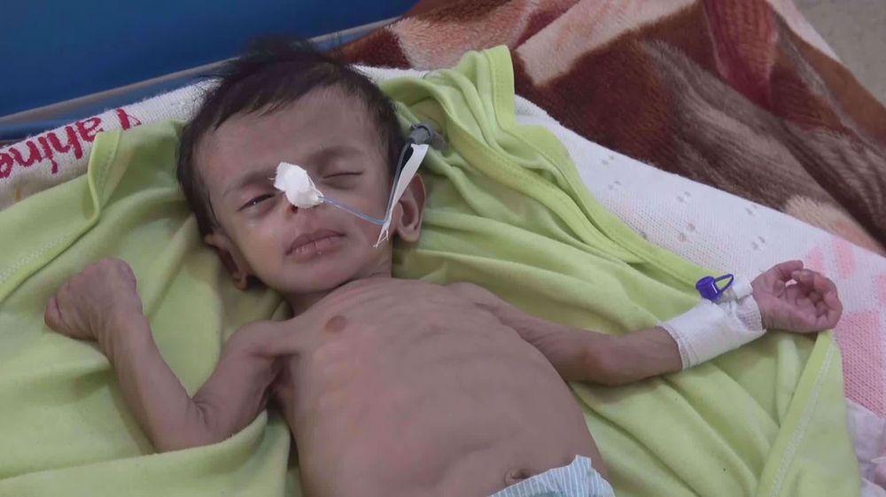 UNICEF: 10K children killed or maimed in Yemen