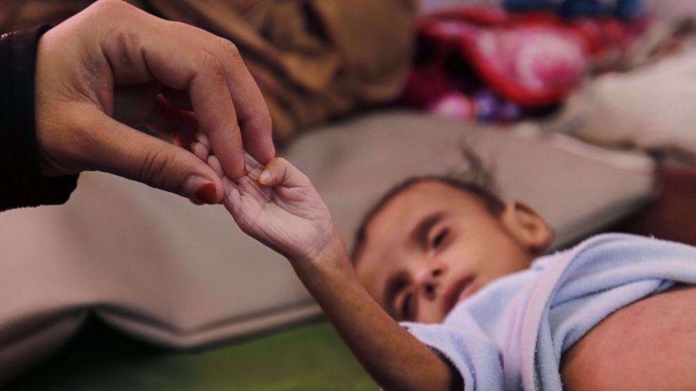 Yemen: Riyadh failed in its war; Sana'a open to fair, honorable peace