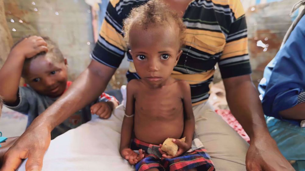One Yemeni child dies every five minutes in the war-ravaged country