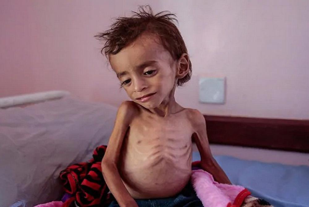 1 child dies every 10 minutes in Yemen amid Saudi-led war: UNICEF