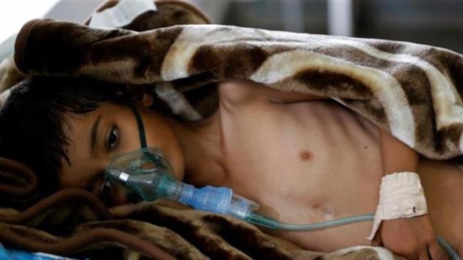 UN Security Council meets on Yemen